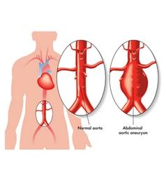 Abdominal aortic aneurysm vector image