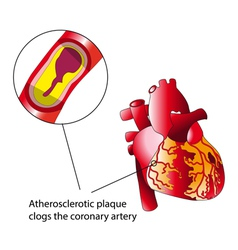 Atherosclerotic plaque vector image