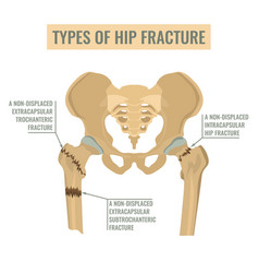Types of hip fracture vector