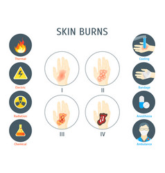 human skin burns infographic card poster vector image vector image