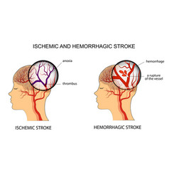 Ischemic and hemorrhagic stroke vector