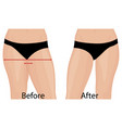 fat thigs correction liposuction before after vector image vector image