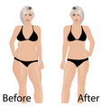 woman body correction liposuction vector image vector image