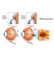 showing open-angle glaucoma vector image vector image