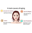 causes of aging isolated on vector image vector image