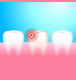 toothache a tooth with dental caries and pain vector image vector image