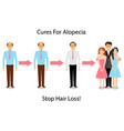 a man is treated for alopecia vector image vector image