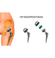 female hip and hip prosthesis vector image vector image