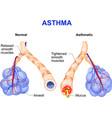 Asthma vector image