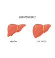 enlarged liver hepatomegaly disease icon human vector image vector image