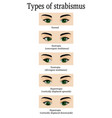 types of strabismus vector image