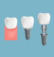 schematic infographics of human teeth and implant vector image vector image