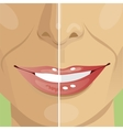 half faced woman before tanning and after vector image