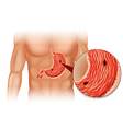 Stomach Ulcer in human body vector image vector image
