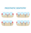 prosthetic dentistry poster icons different vector image