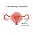 Mucinous cyst on the ovary Cystadenoma Ovary vector image vector image