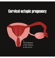Development of the embryo in the cervix Ectopic vector image vector image
