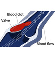 Venous thrombosis vector image vector image