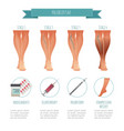phlebology infographic treating varicose veins vector image