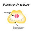 parkinsons disease degenerative changes vector image vector image