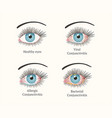 eye disease ophthalmology health vector image
