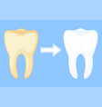 teeth whitening concept before and after vector image
