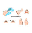 plastic nose cosmetic surgery vector image vector image