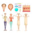 hair loss elements set vector image