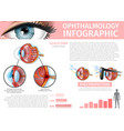 glaucoma disorder uvb uva rays eyes protection vector image vector image