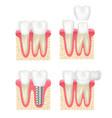 dental crown tooth veneer implants healthy cavity vector image vector image