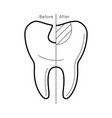 tooth before and after caries vector image