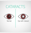 cataracts icon vector image vector image