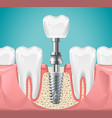 dental surgery tooth implant cut vector image vector image
