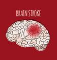 brain stroke insult medicine health vector image