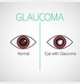glaucoma icon vector image