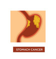 stomach cancer symptom disease oncology and tumor vector image