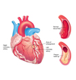 Coronary artery disease vector image vector image