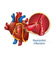 myocardial infarction 3d realostic heart vector image