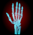 x-ray hand vector image