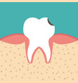 sectional view tooth vector image