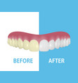 background with 3d realistic render denture vector image vector image