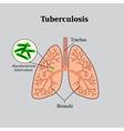 Tuberculosis Lung disease Tubercle bacillus vector image vector image