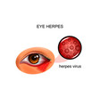 herpes virus of the eye vector image vector image