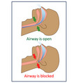 snoring and sleep apnea about health care and vector image vector image