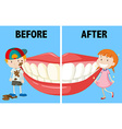 Opposite words before and after vector image vector image
