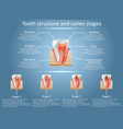 tooth structure diagram and dental caries vector image