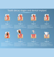 tooth decay stages and dental implant vector image