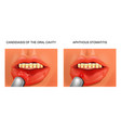candidiasis and aphthous stomatitis vector image vector image