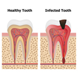 Pulpitis and Healthy tooth vector image vector image