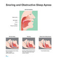 snoring and obstructive sleep apnea vector image vector image